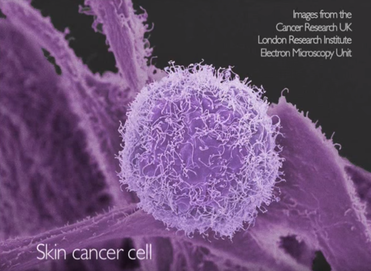 Cancer is so difficult to cure because it is so profitable